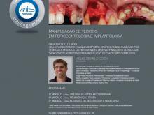 Manipulação de Tecidos em Periodontologia e Implantologia